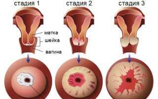 Инвазивный и неинвазивный рак шейки матки