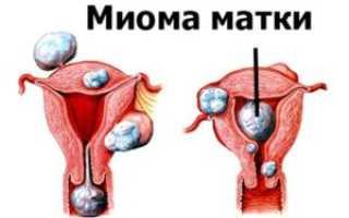 Климакс и миома матки