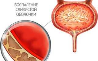 Симптомы и лечение интерстициального цистита