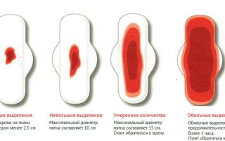 Обильные месячные: причины и лечение
