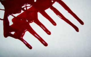 К чему может сниться кровотечение беременной девушке?