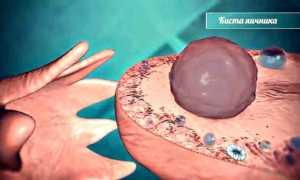 Возможна ли беременность при кисте яичника?