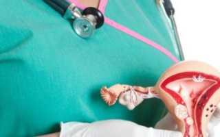Рак тела и шейки матки: симптомы и лечение