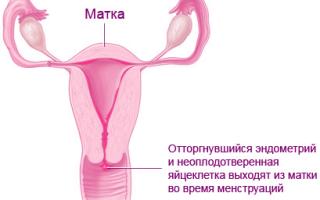 Предменструальный синдром: признаки, симптомы и лечение
