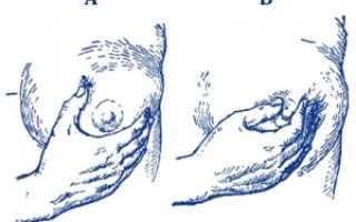 Молозиво во время беременности: норма или патология?