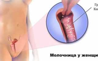 Лечение кандидоза у женщин: препараты