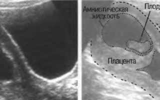 Гематома при беременности: виды, последствия, лечение