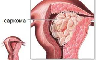 Симптомы саркомы матки