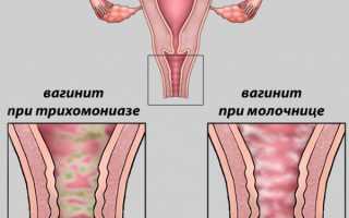 Тержинан: инструкция по применению при беременности