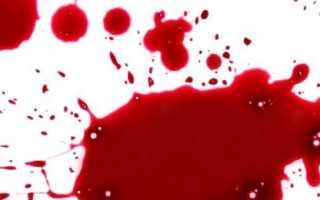 К чему снится кровотечение?