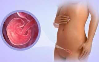 Токсикоз при замершей беременности
