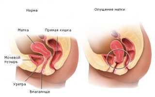 Причины смещения и отклонения матки