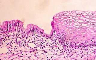 Плоскоклеточная метаплазия шейки матки: причины и лечение