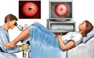 Симптомы и лечение плоскоклеточного рака шейки матки