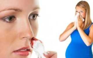 Кровь из носа во время беременности: причины и лечение